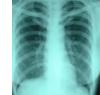 胸部・その他のレントゲン検査